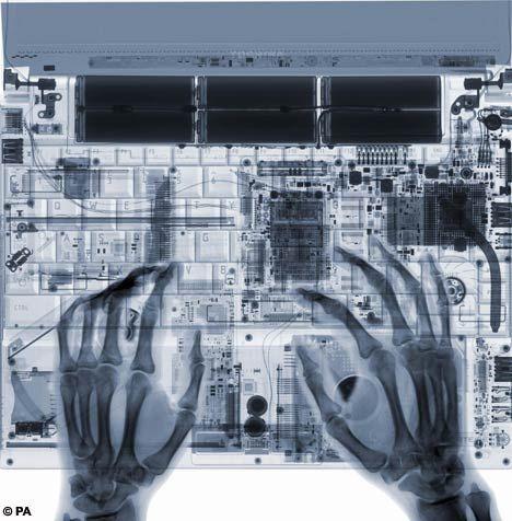 Жизнь под рентгеном (27 фоток)